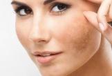 Lý do khiến làn da của bạn mãi xấu