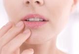 Tại sao không nên liếm môi khi môi khô?
