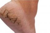 Ung thư từ vết nứt gót chân, bác sĩ nói gì?