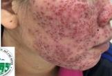 Khuôn mặt bị hỏng nặng sau khi sử dụng lột da bằng hóa chất
