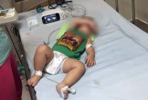 3 trẻ trong một gia đình tử vong nghi vì bệnh Whitmore
