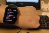 Apple Watch bị 'treo' nên làm thế nào?