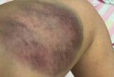 Xót xa người vợ bị chồng vũ phu đánh bầm giập phải nhập viện trong ngày Valentine