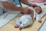 Lý do trẻ sơ sinh cần tầm soát tim bẩm sinh