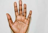 9 lý do tại sao tay của bạn bị run