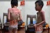 Cháu bé nghi bị bố dượng hành hung tại Thanh Hóa: Clip cắt ghép từ mạng Trung Quốc