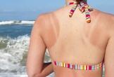 Bạn đã biết cách để làn da không bắt nắng?
