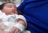 Bé sơ sinh 15 ngày tuổi mắc bệnh tim cần được phẫu thuật gấp
