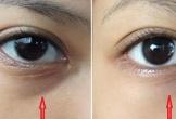 3 cách chữa thâm mắt vô cùng đơn giản