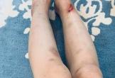 Phương Oanh 'Quỳnh búp bê' bầm dập khắp người sau nửa tháng 'mất tích'