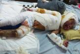 2 chị em bị bỏng không tiền chạy chữa cần giúp đỡ