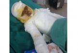 Bé gái bị bỏng nặng cần được giúp đỡ