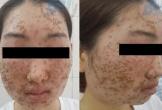 Mặt thiếu nữ bong da từng mảng sau khi dùng bột rửa mặt
