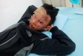 Nam sinh Đắk Lắk bị cháy xém mặt vì học cách chế tạo pháo trên Youtube