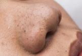 Mặt nạ dành riêng cho làn da bị nhiều mụn đầu đen