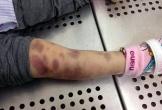 Tạm giữ người mẹ bạo hành con gái 3 tuổi