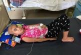 Bé gái 7 tuổi ung thư võng mạc:
