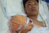 Thiếu niên 17 tuổi sốc vì mất tay, chân phải sau tai nạn giao thông