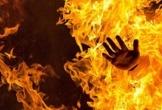 Quảng Bình:  Điều tra nguyên nhân một nam thanh niên bị bỏng nặng vì cháy xăng