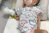 Bé gái 1 tuổi mắc đa bệnh phải nằm viện từ khi mới lọt lòng