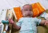 Bé trai 5 tháng tuổi mắc đa bệnh cần tiền để ghép tuỷ