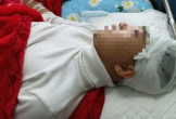 Thanh Hóa: Khởi tố, bắt tạm giam nam sinh đánh bạn cùng trường vỡ sọ não