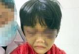Điều tra vụ bé gái nghi bị mẹ đánh tím mắt, tinh thần hoảng loạn
