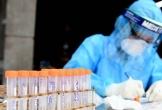 Hà Nội: Người đàn ông Ấn Độ dương tính SARS-CoV-2 sau khi rời khu cách ly