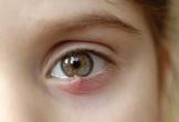 3 cách trị lẹo mắt tại nhà đơn giản nhất